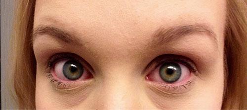 Краснота глаз - один из симптомов аллергии