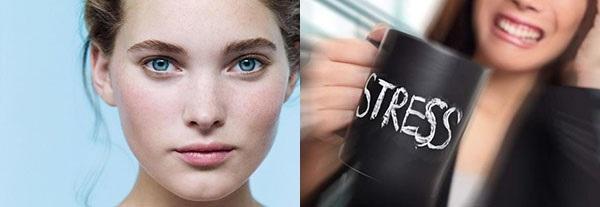 чистая кожа и стресс